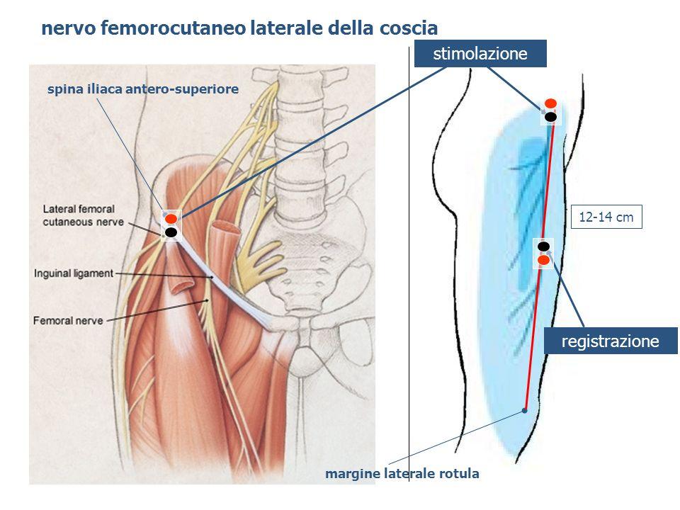 nervo femorocutaneo laterale della coscia registrazione stimolazione spina iliaca antero-superiore margine laterale rotula 12-14 cm