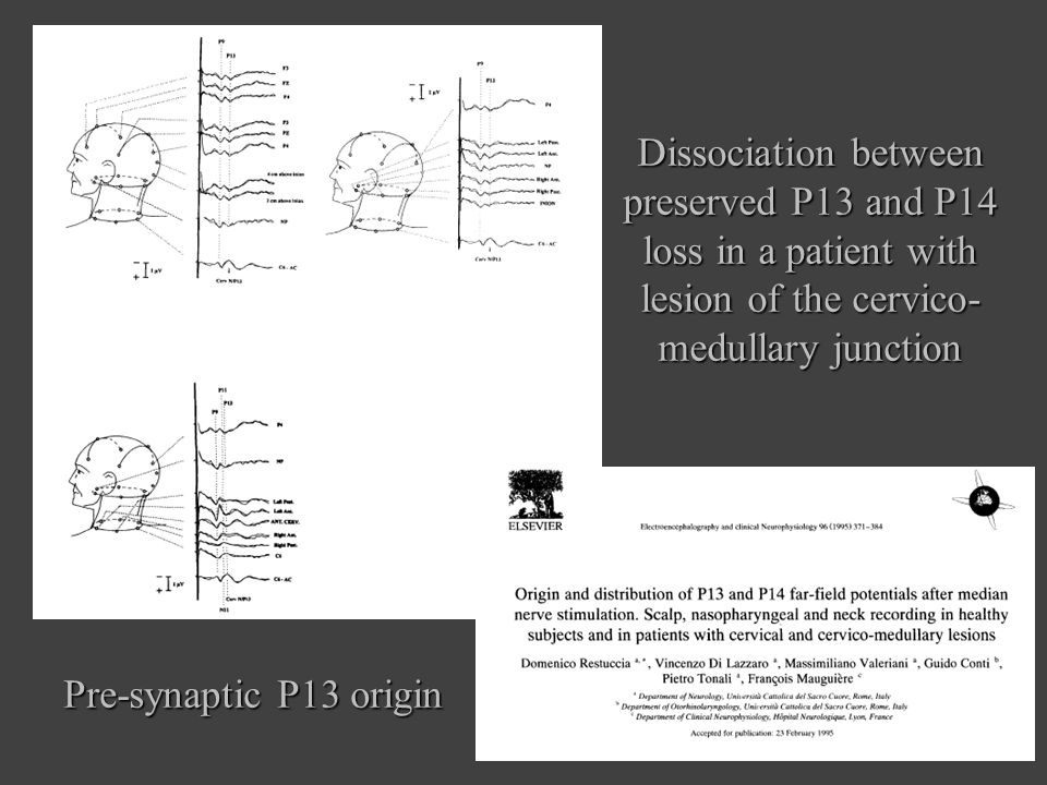 Pre-synaptic P13 origin Dissociation between preserved P13 and P14 loss in a patient with lesion of the cervico- medullary junction