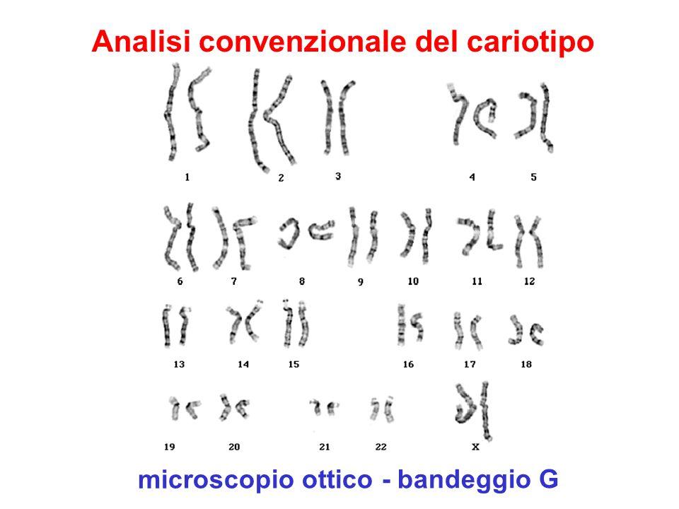 microscopio ottico - bandeggio G Analisi convenzionale del cariotipo