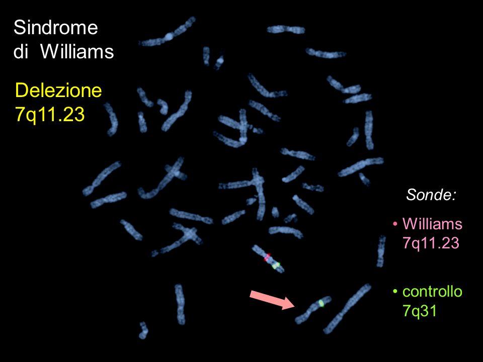 Sonde: Williams 7q11.23 controllo 7q31 Sindrome di Williams Delezione 7q11.23