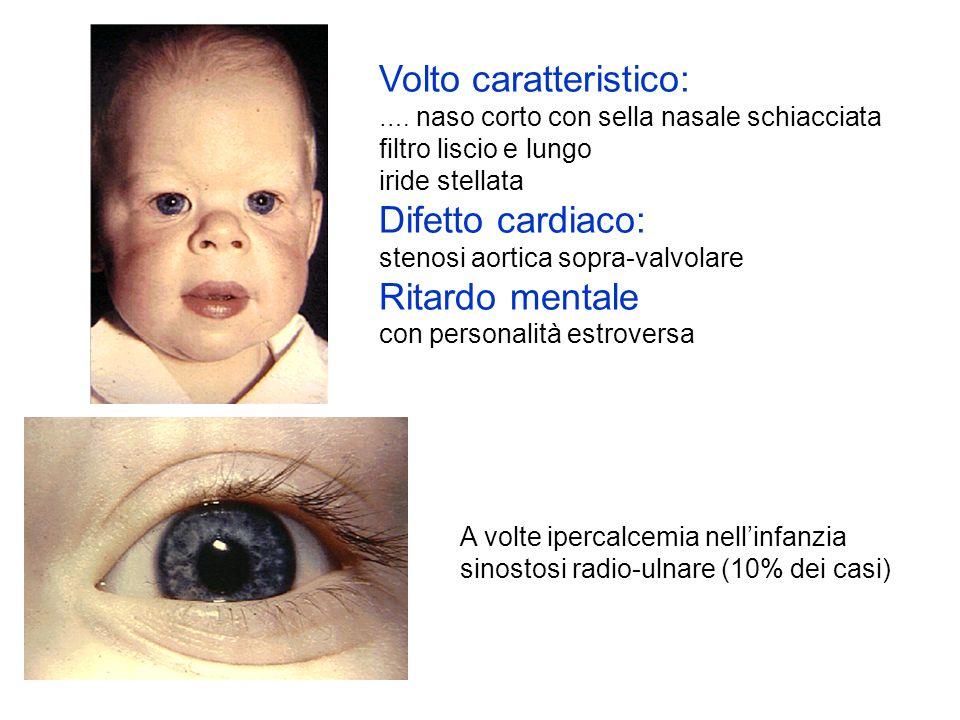 Volto caratteristico: …. naso corto con sella nasale schiacciata filtro liscio e lungo iride stellata Difetto cardiaco: stenosi aortica sopra-valvolar