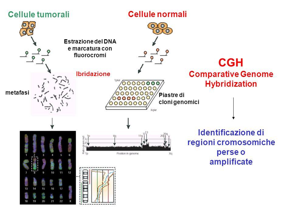 CGH Comparative Genome Hybridization Identificazione di regioni cromosomiche perse o amplificate Cellule tumorali Cellule normali Estrazione del DNA e