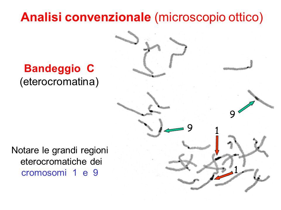 Bandeggio C (eterocromatina) Notare le grandi regioni eterocromatiche dei cromosomi 1 e 9 Analisi convenzionale (microscopio ottico) 9 9 1 1