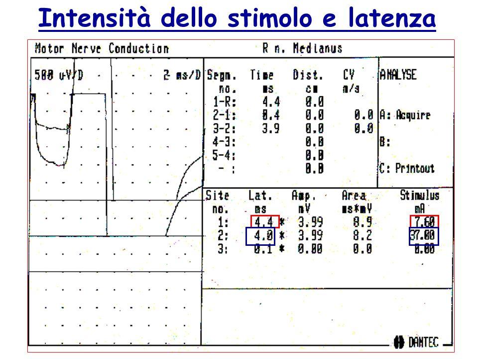 Intensità dello stimolo e latenza