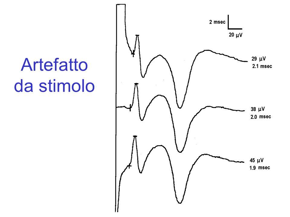 Artefatto da stimolo