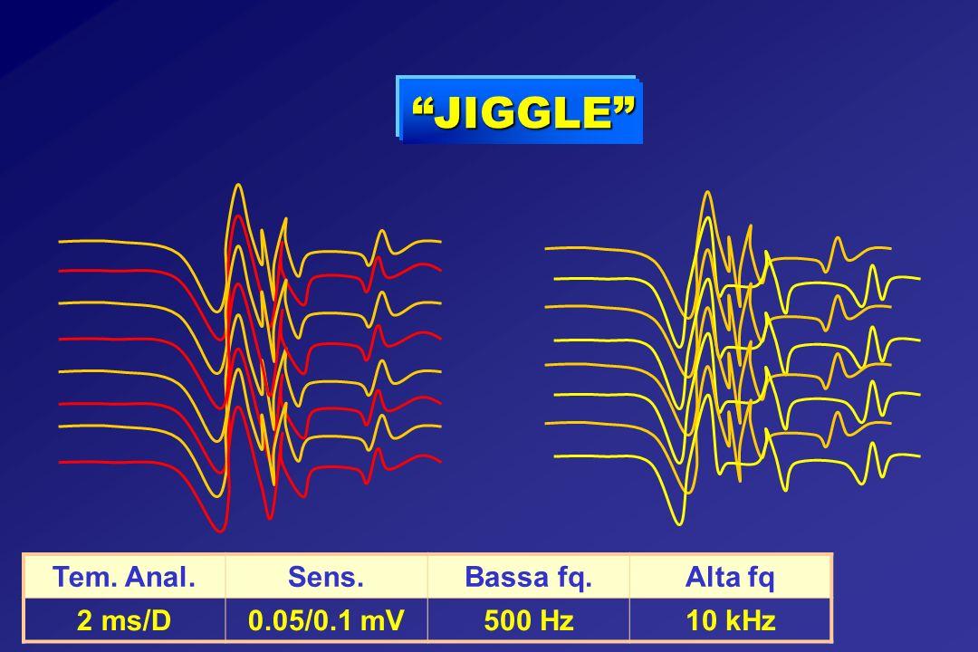 JIGGLE Tem. Anal.Sens.Bassa fq.Alta fq 2 ms/D0.05/0.1 mV500 Hz10 kHz