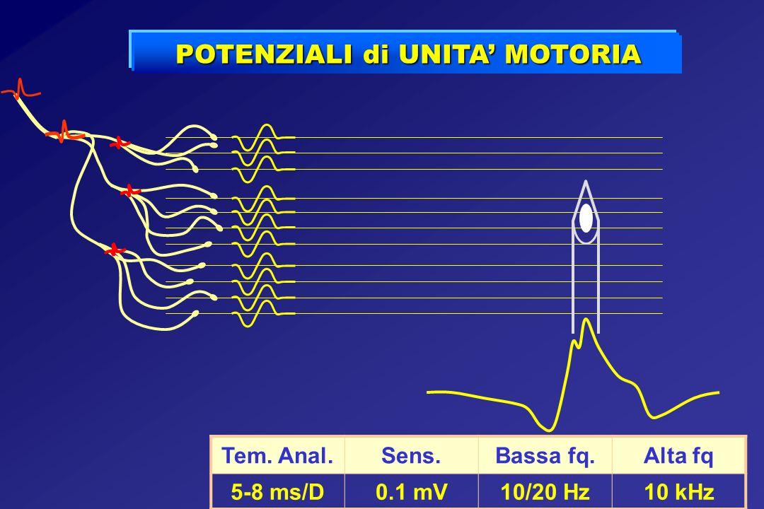 POTENZIALI di UNITA MOTORIA Tem. Anal.Sens.Bassa fq.Alta fq 5-8 ms/D0.1 mV10/20 Hz10 kHz