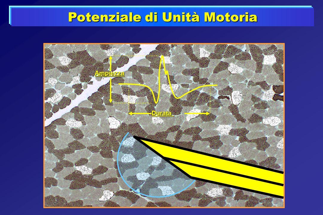 Potenziale di Unità Motoria Durata Ampiezza