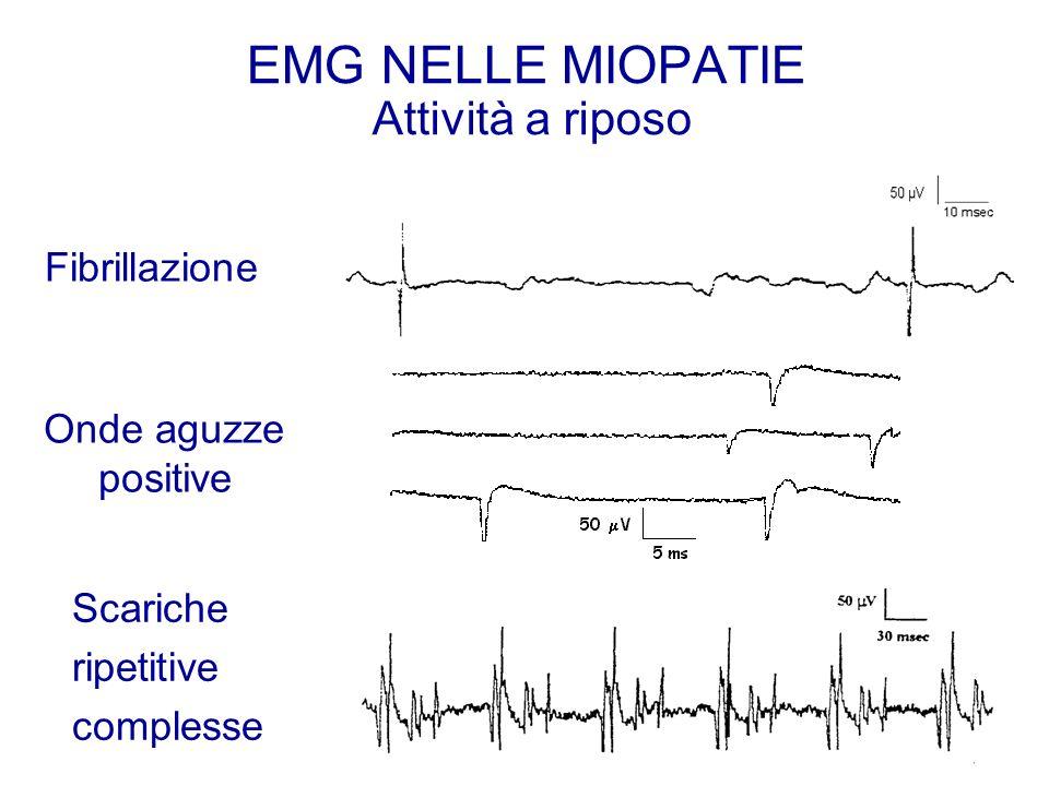 EMG NELLE MIOPATIE Attività a riposo Onde aguzze positive Fibrillazione Scariche ripetitive complesse