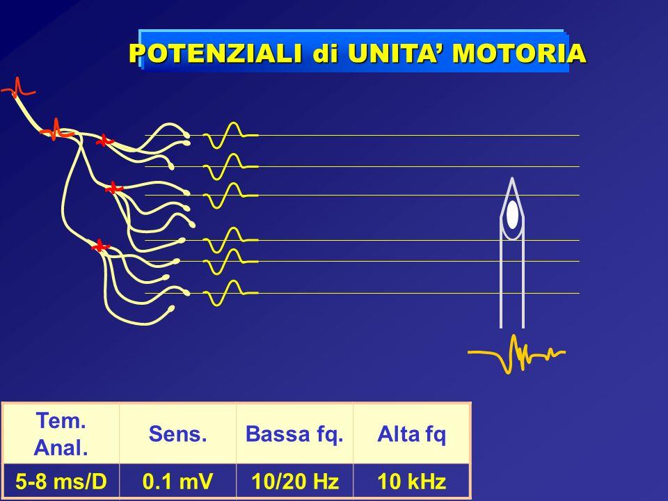 Tem. Anal. Sens.Bassa fq.Alta fq 5-8 ms/D0.1 mV10/20 Hz10 kHz