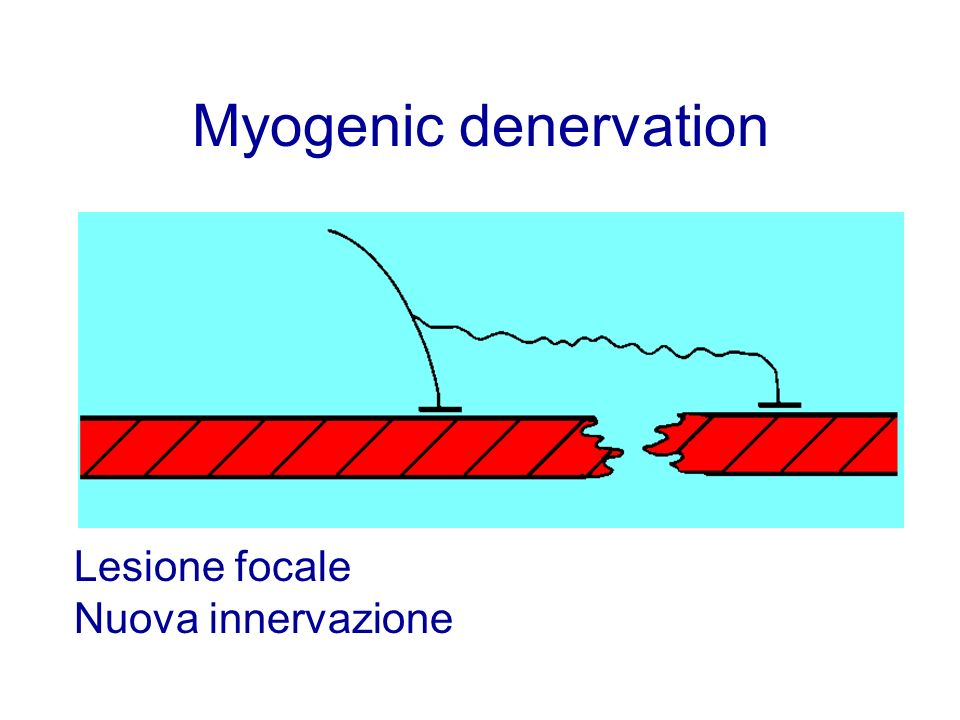 Myogenic denervation Lesione focale Nuova innervazione