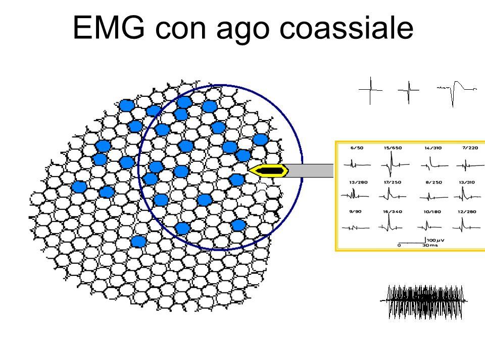 EMG con ago coassiale