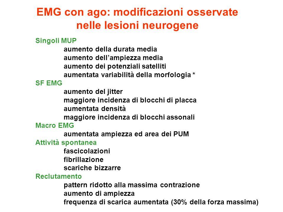 EMG con ago: modificazioni osservate nelle lesioni neurogene Singoli MUP aumento della durata media aumento dellampiezza media aumento dei potenziali