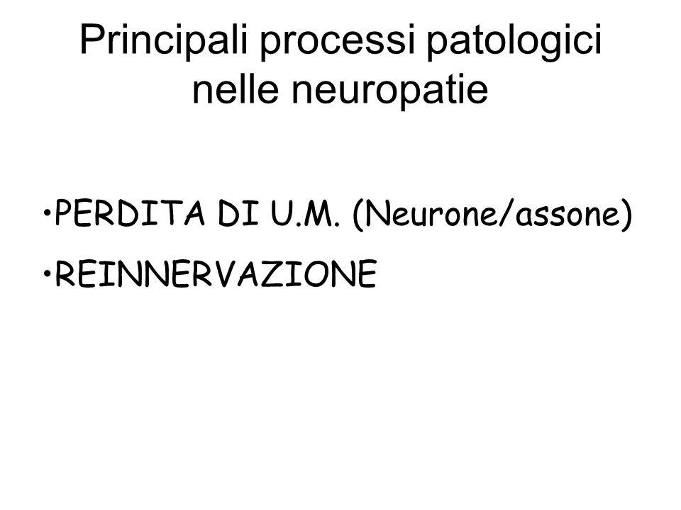Principali processi patologici nelle neuropatie PERDITA DI U.M. (Neurone/assone) REINNERVAZIONE