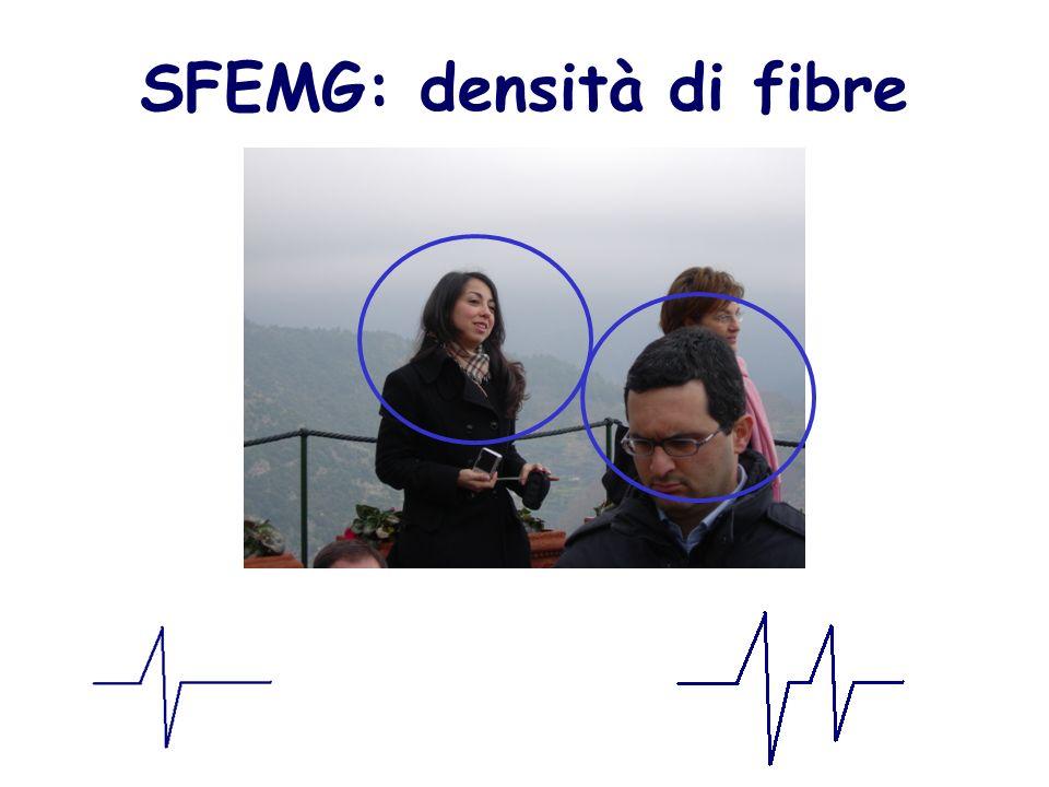 SFEMG: densità di fibre