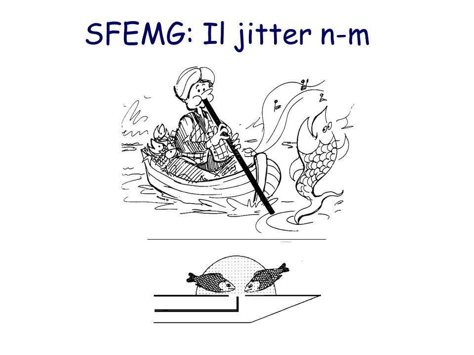 SFEMG: Il jitter n-m