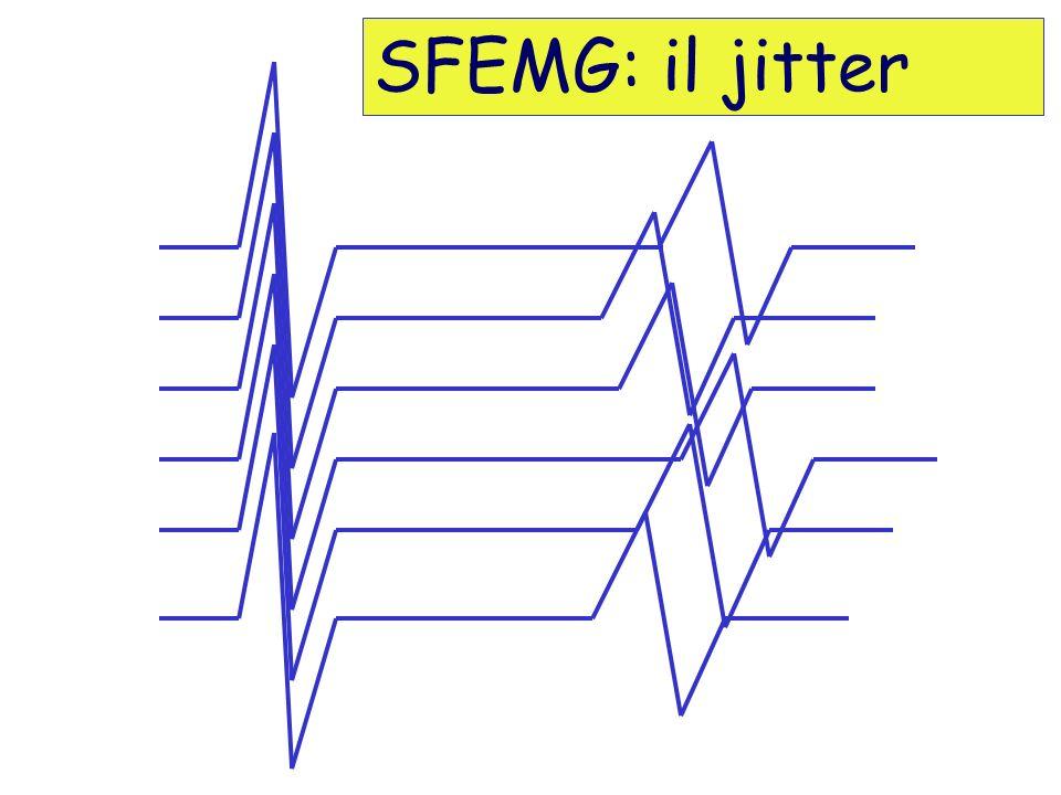SFEMG: il jitter