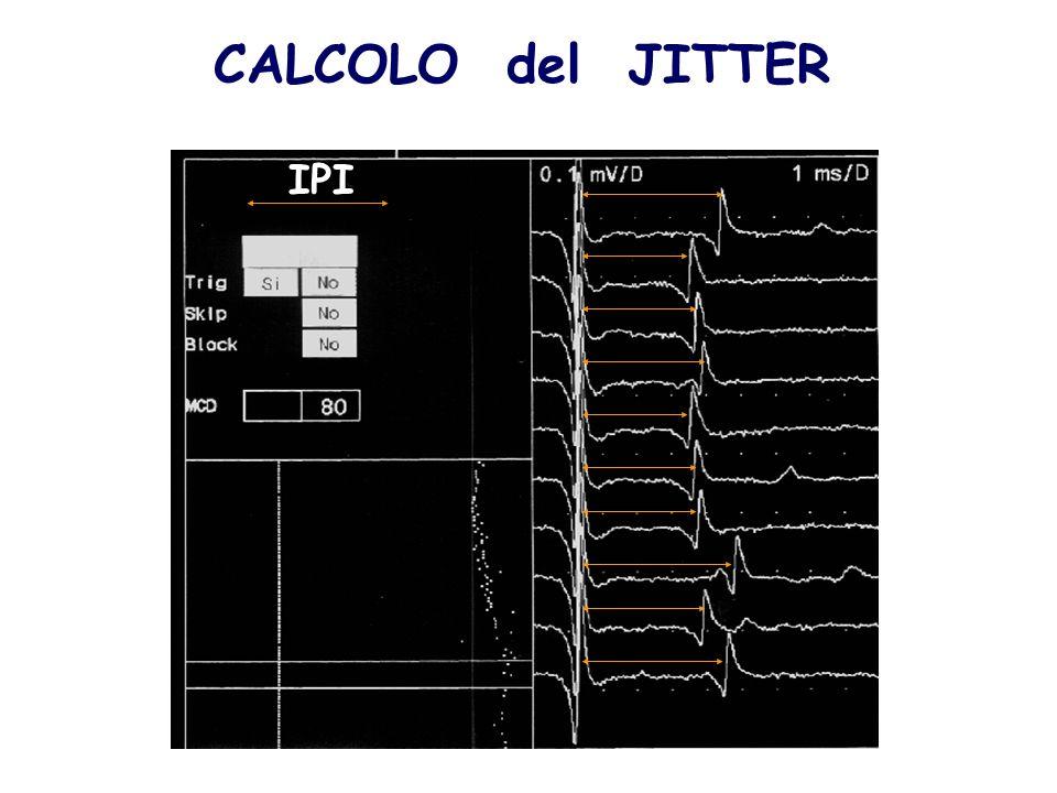 IPI CALCOLO del JITTER
