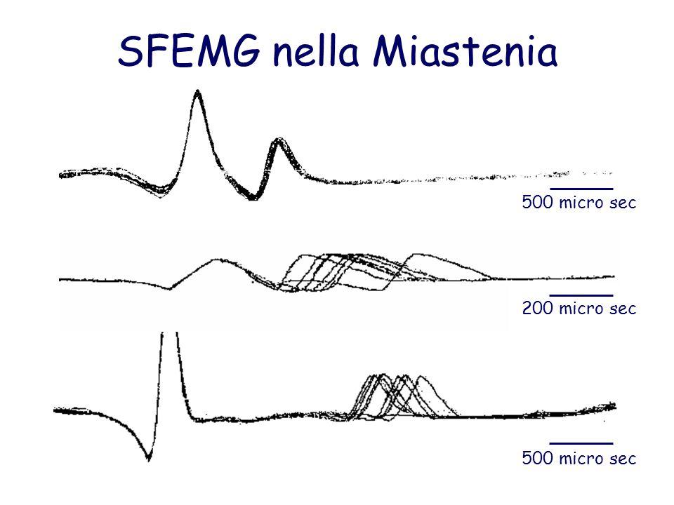 SFEMG nella Miastenia 500 micro sec 200 micro sec
