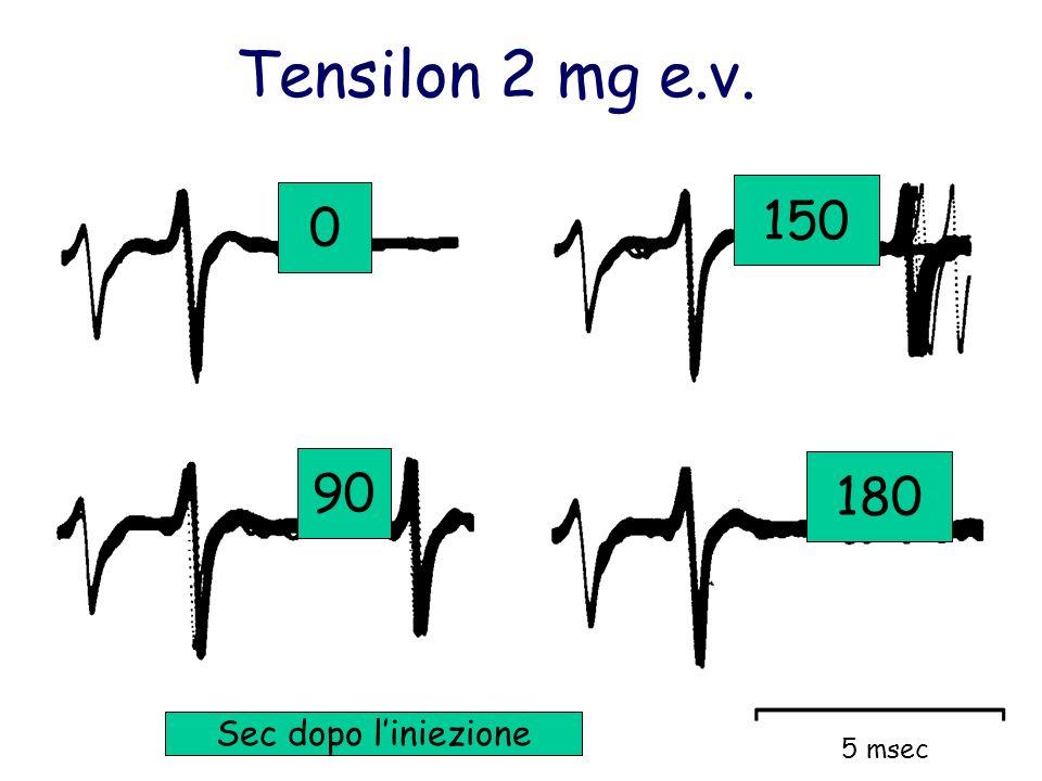 90 150 0 180 Sec dopo liniezione Tensilon 2 mg e.v. 5 msec