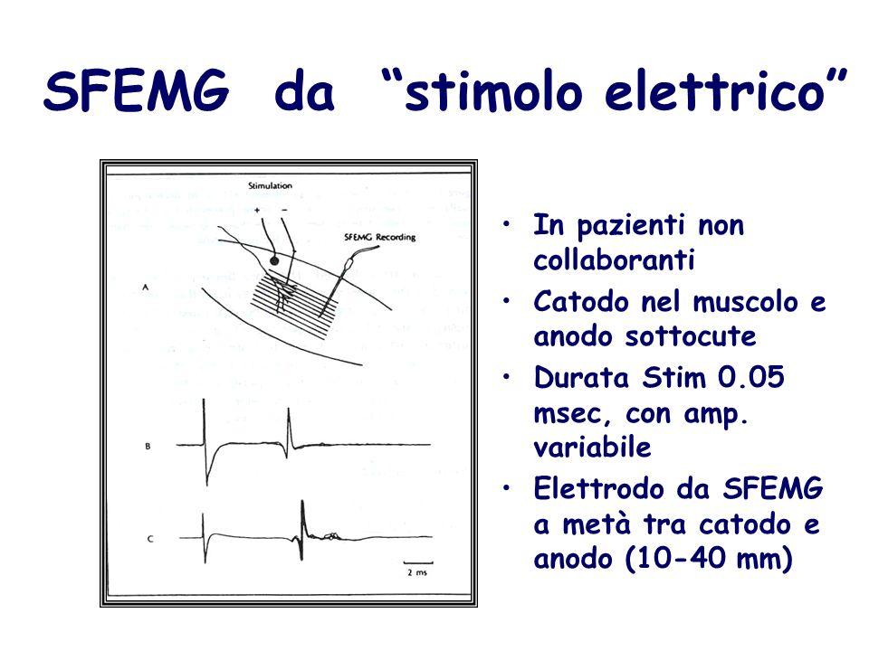SFEMG da stimolo elettrico In pazienti non collaboranti Catodo nel muscolo e anodo sottocute Durata Stim 0.05 msec, con amp. variabile Elettrodo da SF