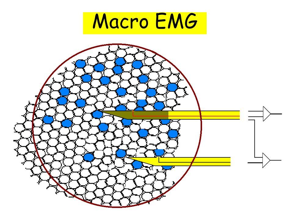 Macro EMG