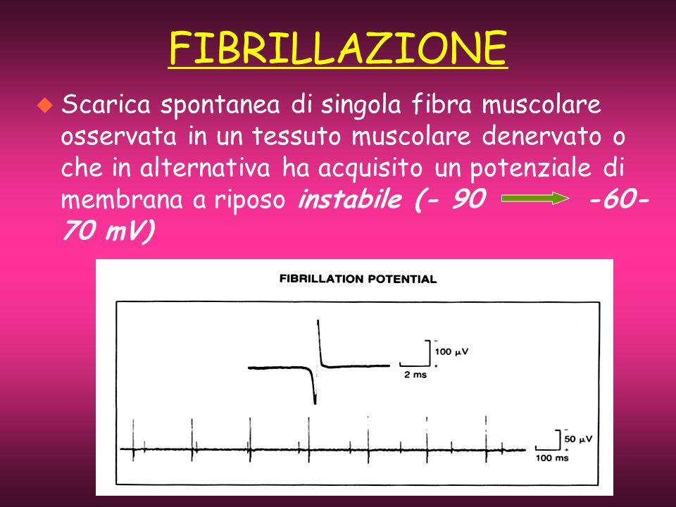 FIBRILLAZIONE u Scarica spontanea di singola fibra muscolare osservata in un tessuto muscolare denervato o che in alternativa ha acquisito un potenzia