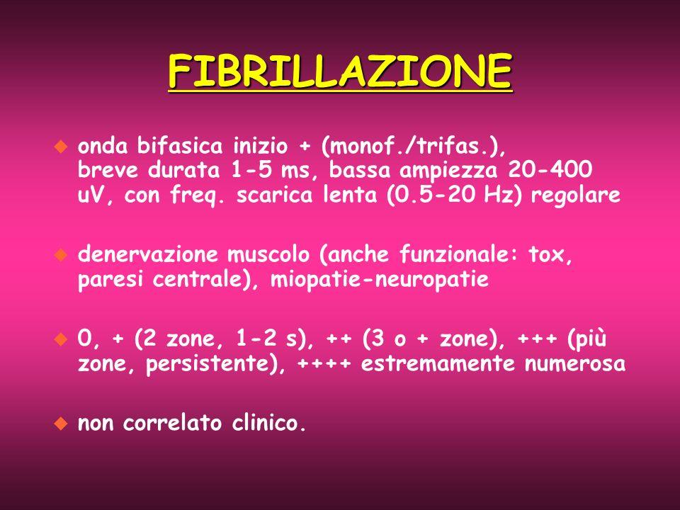 FIBRILLAZIONE u onda bifasica inizio + (monof./trifas.), breve durata 1-5 ms, bassa ampiezza 20-400 uV, con freq. scarica lenta (0.5-20 Hz) regolare u