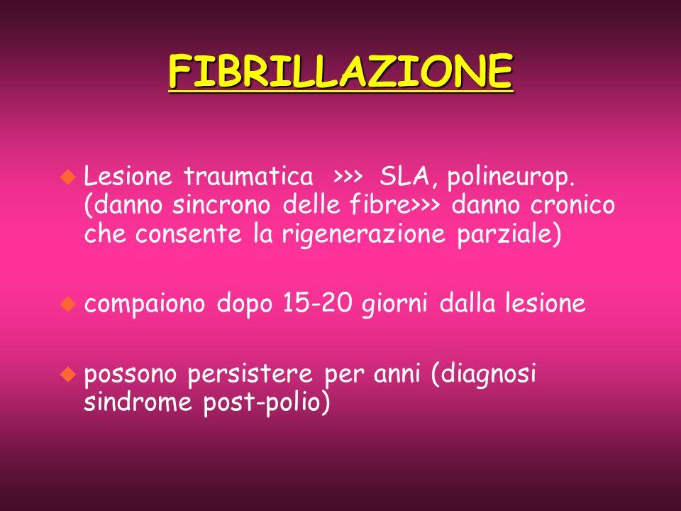 u Lesione traumatica >>> SLA, polineurop. (danno sincrono delle fibre>>> danno cronico che consente la rigenerazione parziale) u compaiono dopo 15-20