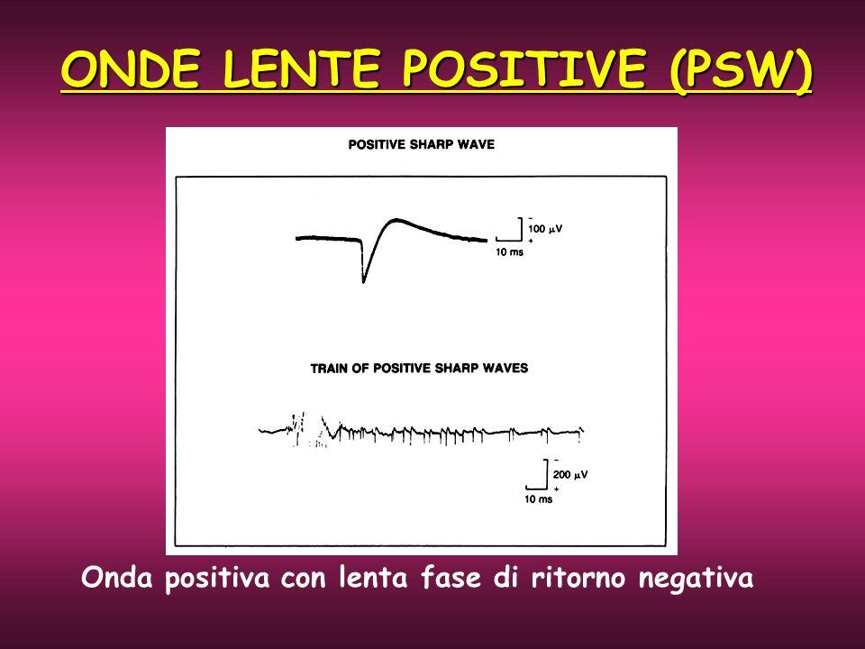 ONDE LENTE POSITIVE (PSW) Onda positiva con lenta fase di ritorno negativa