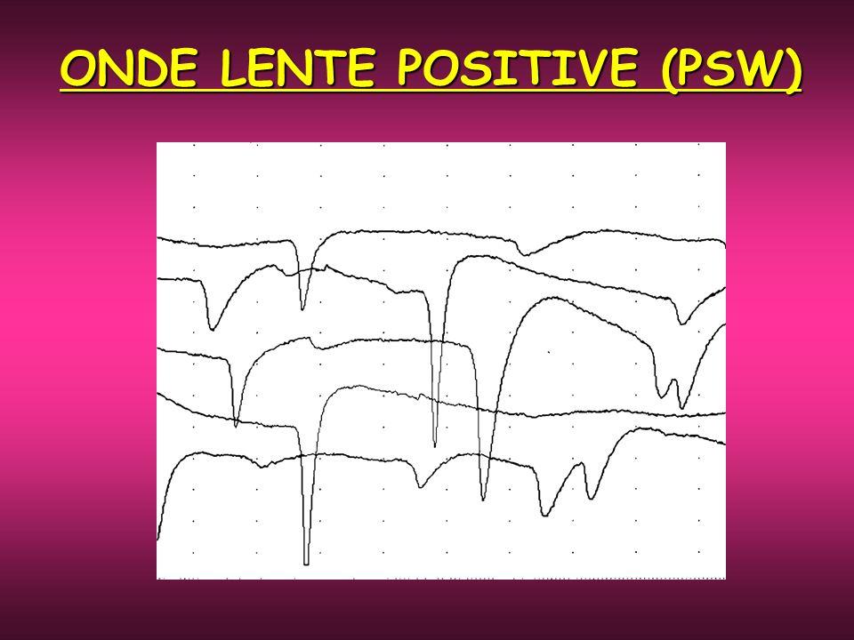 ONDE LENTE POSITIVE (PSW)