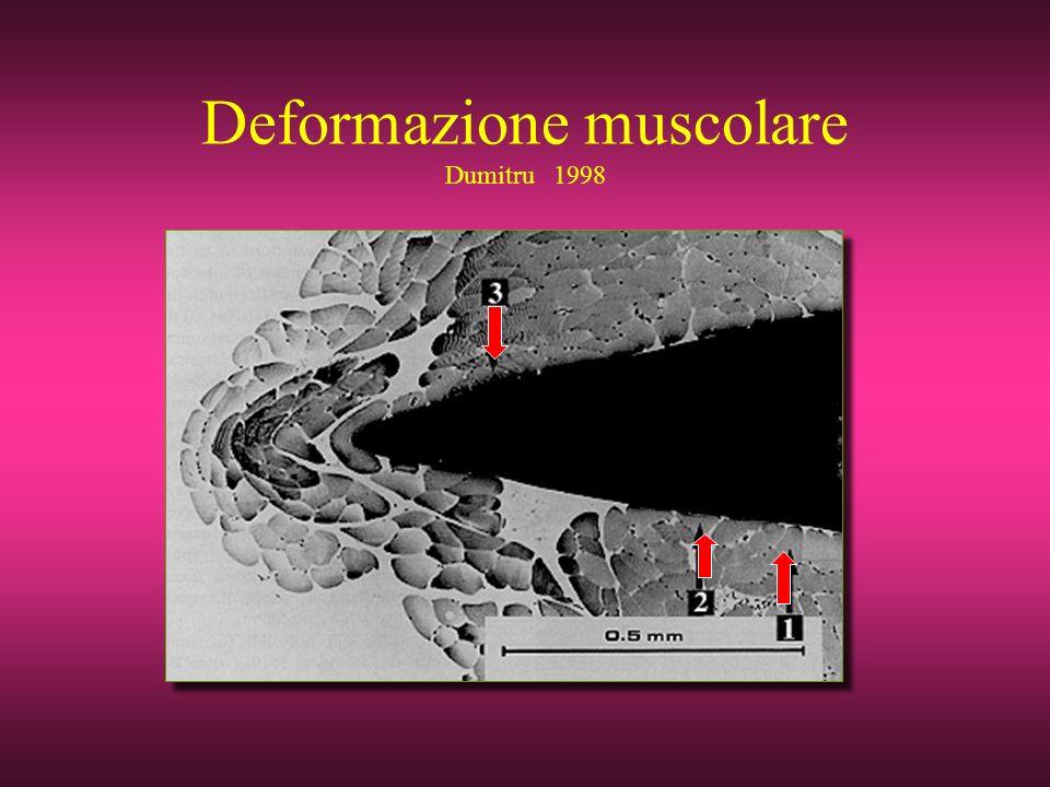 Deformazione muscolare Dumitru 1998