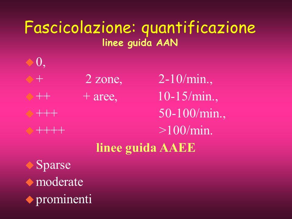 Fascicolazione: quantificazione linee guida AAN u 0, u + 2 zone, 2-10/min., u ++ + aree, 10-15/min., u +++ 50-100/min., u ++++ >100/min. linee guida A