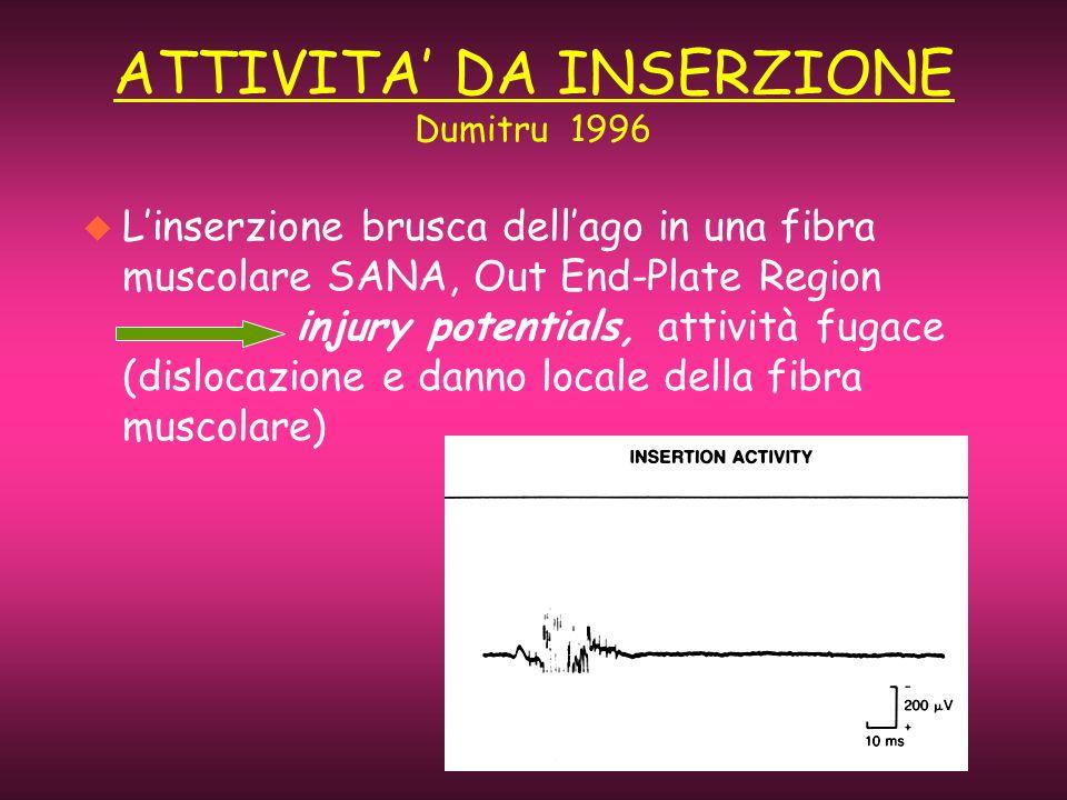 ATTIVITA DA INSERZIONE Dumitru 1996 u Linserzione brusca dellago in una fibra muscolare SANA, Out End-Plate Region injury potentials, attività fugace