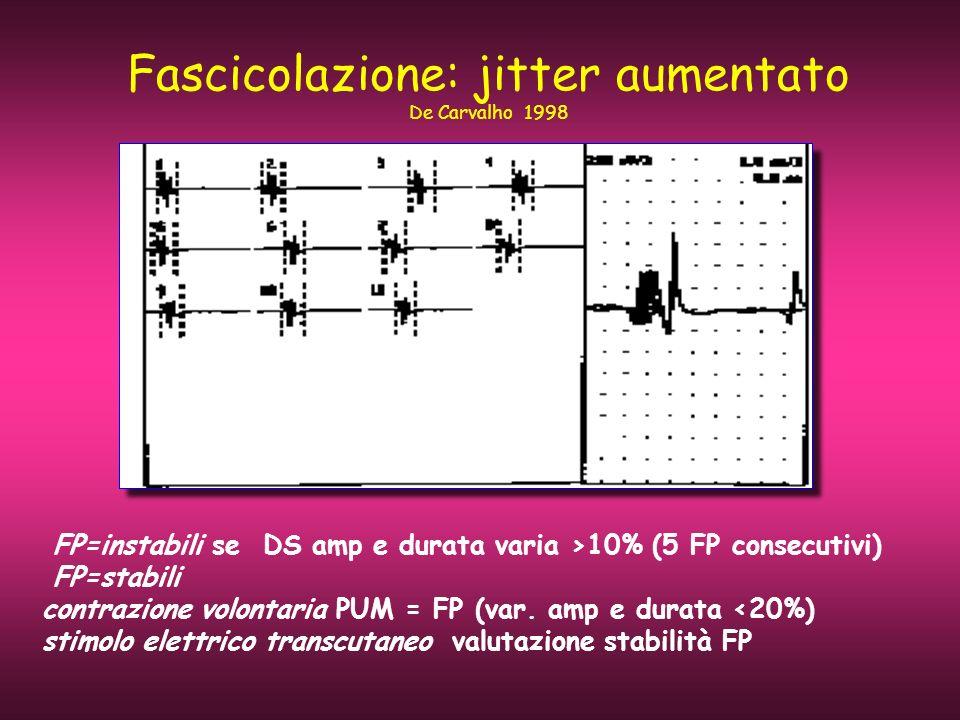Fascicolazione: jitter aumentato De Carvalho 1998 FP=instabili se DS amp e durata varia >10% (5 FP consecutivi) FP=stabili contrazione volontaria PUM