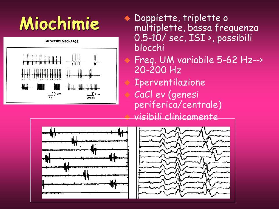 u Doppiette, triplette o multiplette, bassa frequenza 0.5-10/ sec, ISI >, possibili blocchi u Freq. UM variabile 5-62 Hz--> 20-200 Hz u Iperventilazio