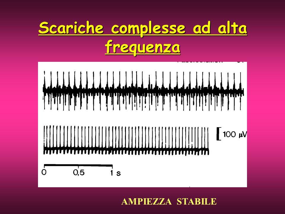 Scariche complesse ad alta frequenza AMPIEZZA STABILE