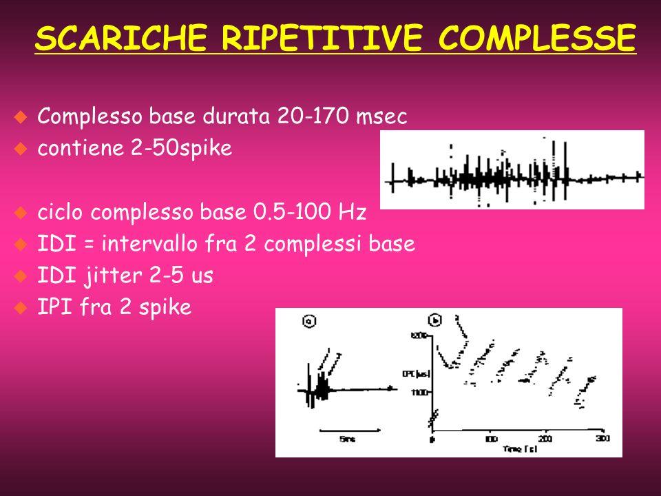 u Complesso base durata 20-170 msec u contiene 2-50spike u ciclo complesso base 0.5-100 Hz u IDI = intervallo fra 2 complessi base u IDI jitter 2-5 us