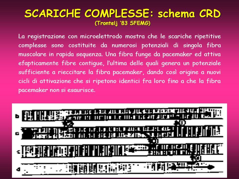 SCARICHE COMPLESSE: schema CRD (Trontelj 83 SFEMG) La registrazione con microelettrodo mostra che le scariche ripetitive complesse sono costituite da