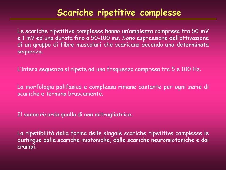 Le scariche ripetitive complesse hanno unampiezza compresa tra 50 mV e 1 mV ed una durata fino a 50-100 ms. Sono espressione dellattivazione di un gru