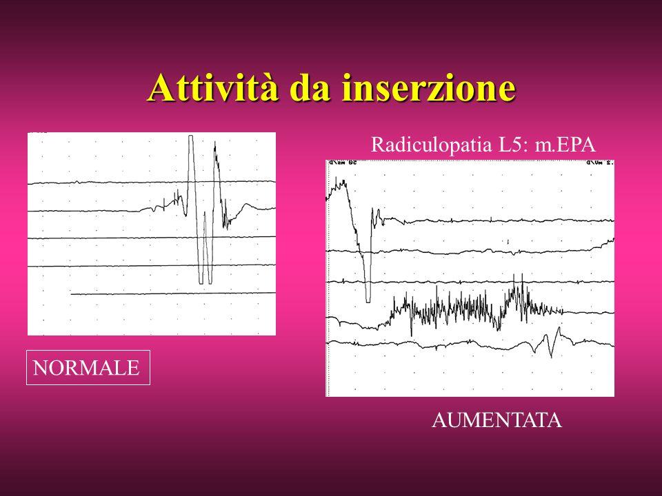 Attività da inserzione NORMALE AUMENTATA Radiculopatia L5: m.EPA