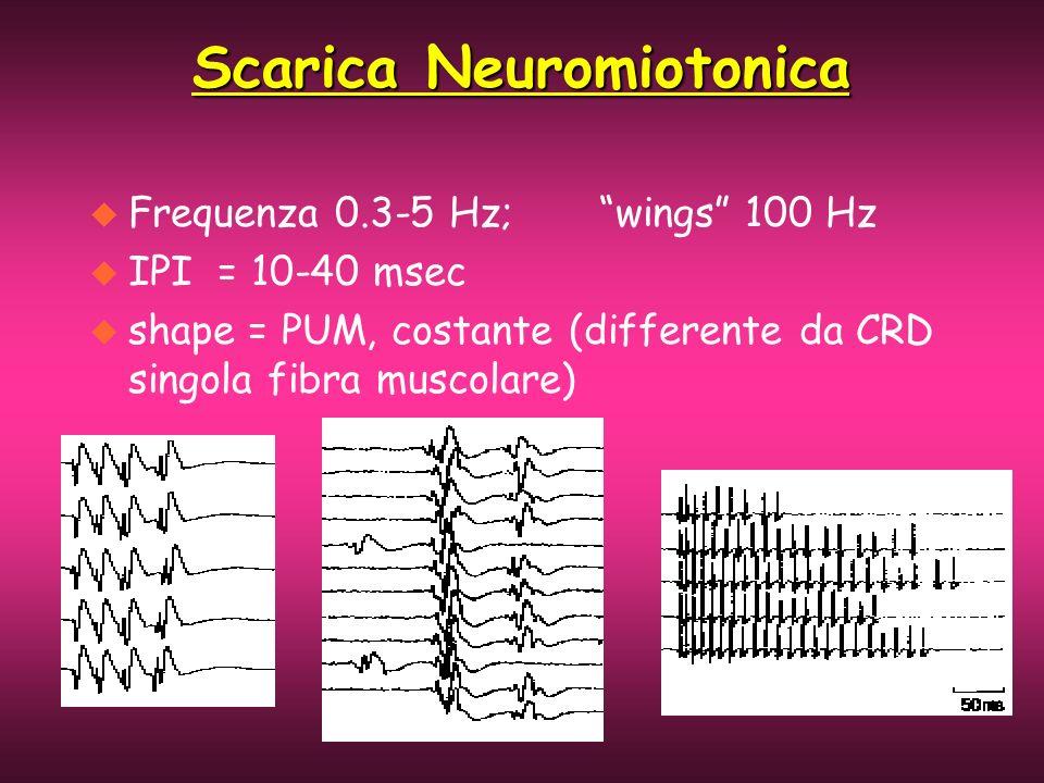 u Frequenza 0.3-5 Hz; wings 100 Hz u IPI = 10-40 msec u shape = PUM, costante (differente da CRD singola fibra muscolare) Scarica Neuromiotonica