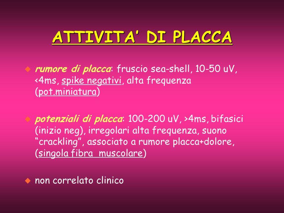 ATTIVITA DI PLACCA u rumore di placca: fruscio sea-shell, 10-50 uV, <4ms, spike negativi, alta frequenza (pot.miniatura) u potenziali di placca: 100-2