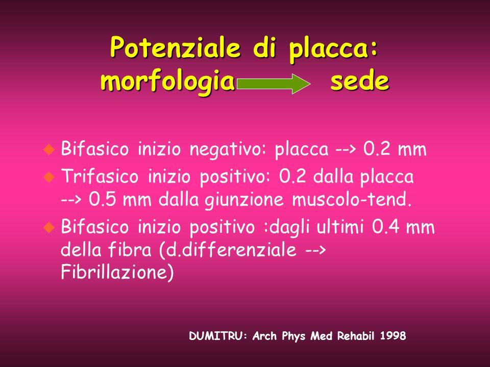 Potenziale di placca: morfologia sede u Bifasico inizio negativo: placca --> 0.2 mm u Trifasico inizio positivo: 0.2 dalla placca --> 0.5 mm dalla giu