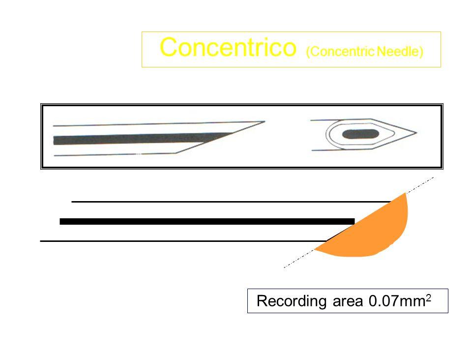 Lelettrodo ad AGO Concentrico é solitamente a 23 - 30 gauge una cannula dacciaio cava con un filo di platino infilato nel centro.