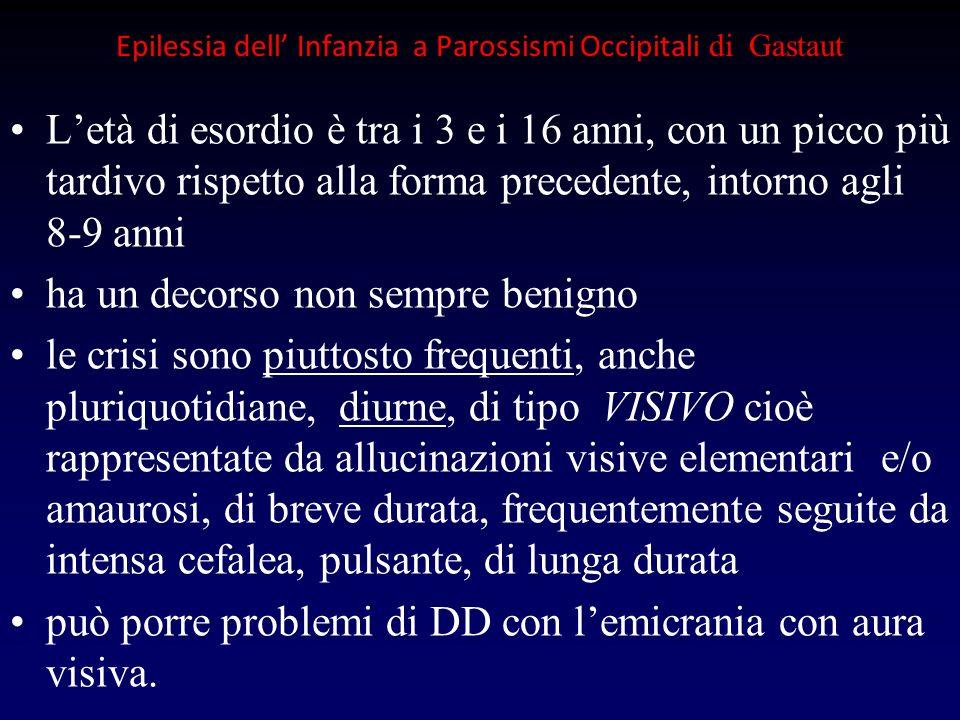 Epilessia dell Infanzia a Parossismi Occipitali di Gastaut Letà di esordio è tra i 3 e i 16 anni, con un picco più tardivo rispetto alla forma precede