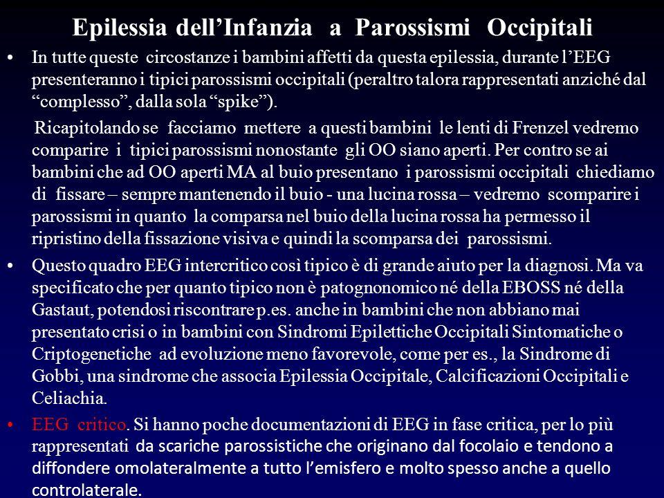 Epilessia dellInfanzia a Parossismi Occipitali In tutte queste circostanze i bambini affetti da questa epilessia, durante lEEG presenteranno i tipici