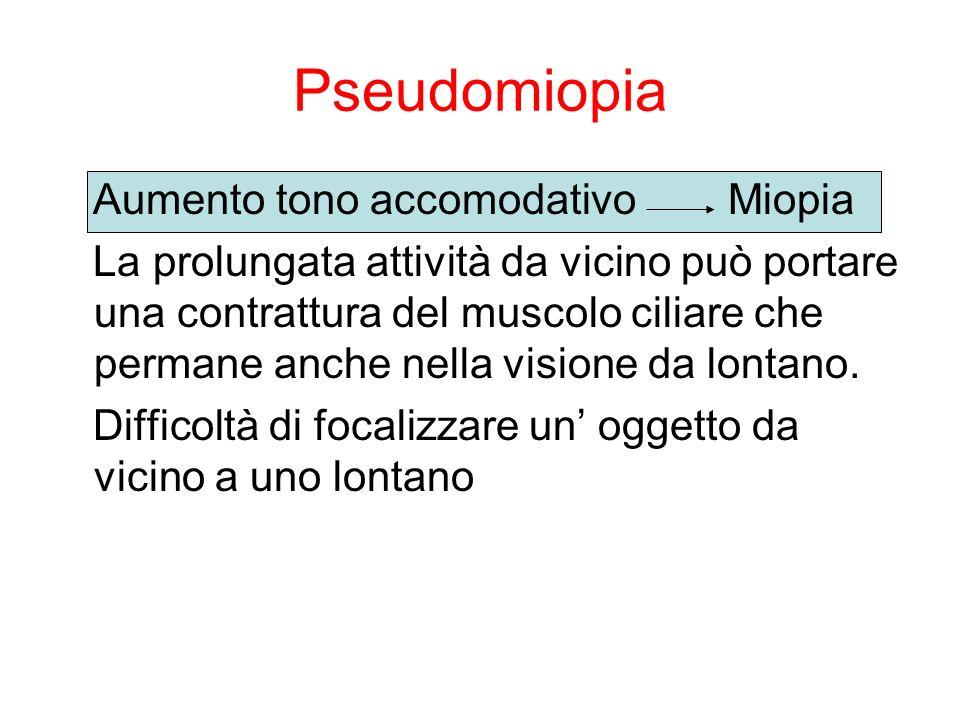 Pseudomiopia Aumento tono accomodativo Miopia La prolungata attività da vicino può portare una contrattura del muscolo ciliare che permane anche nella