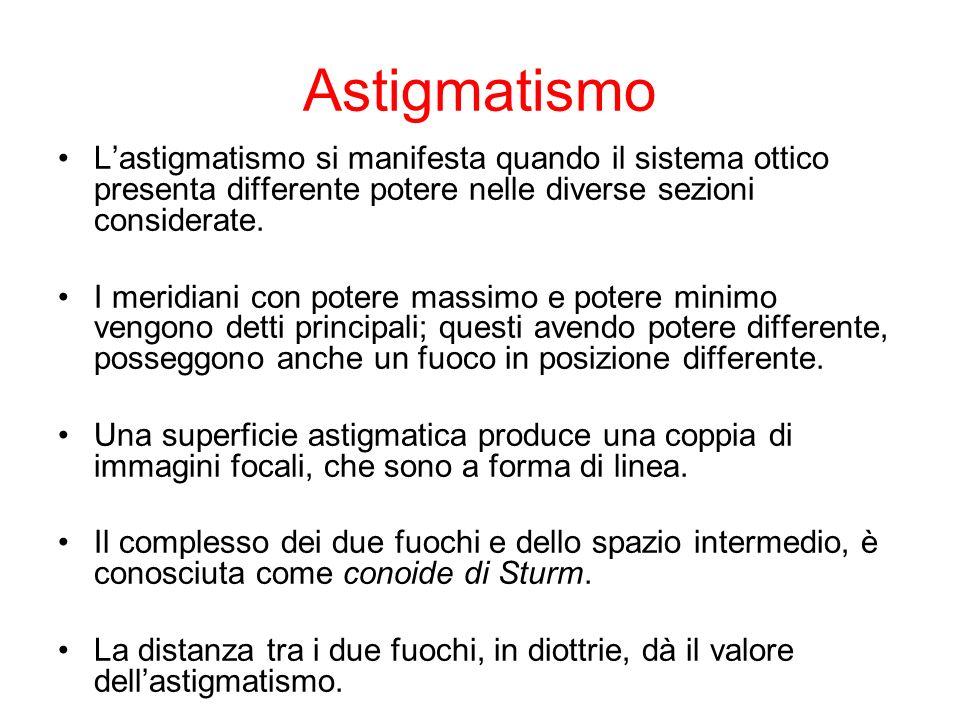 Astigmatismo Lastigmatismo si manifesta quando il sistema ottico presenta differente potere nelle diverse sezioni considerate. I meridiani con potere