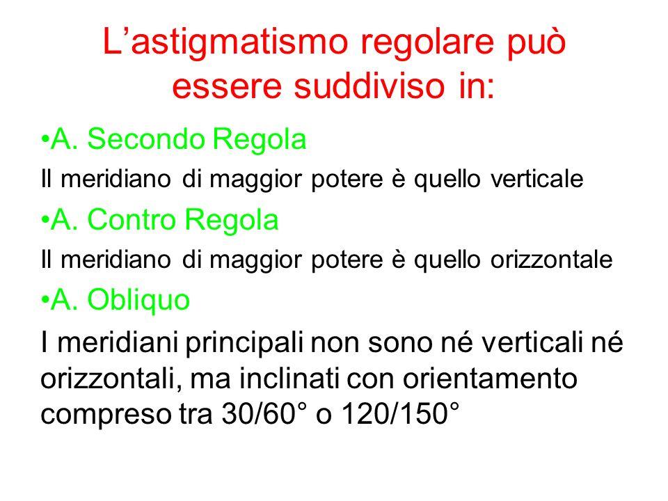 Lastigmatismo regolare può essere suddiviso in: A. Secondo Regola Il meridiano di maggior potere è quello verticale A. Contro Regola Il meridiano di m